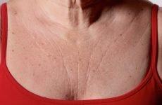 Як позбутися від зморшок на шиї і в зоні декольте — рецепти і рекомендації