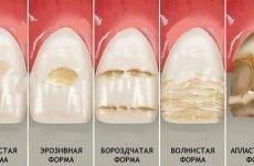Що таке гіпоплазія зубів: причини, методи діагностики та лікування