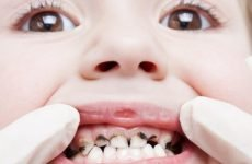 Гнилі зуби у дітей: причини і методи ефективного лікування