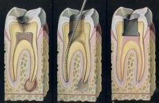 Болить нерв в зубі: що робити і як зняти біль в домашніх умовах