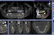 Комп'ютерна томографія зубів: особливості проведення і протипоказання