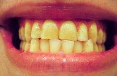 Жовті зуби: причини появи нальоту і методи відбілювання
