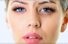 Причини виникнення зморшок під очима в 30 років і способи боротьби з ними