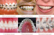 Що таке скоби на зуби: установка, конструкція і різновиди