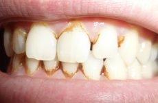 Коричневий наліт на зубах: причини появи і як від нього позбутися