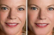 Як омолодити обличчя за допомогою алюмінієвої фольги
