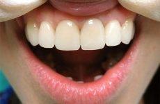 Можна відбілити металокерамічні зуби: методи та рекомендації