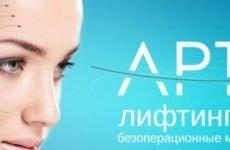 Нитки з насічками для підтяжки обличчя Аптос – ефективність, відгуки клієнтів