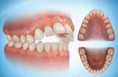 Передні зуби випирають вперед: причини дефекту і методи корекції