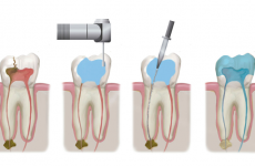 Лікування каналів зуба: етапи, методи та можливі ускладнення