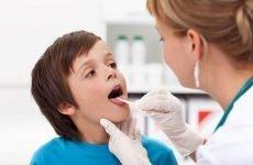 Що робити якщо дитина часто хворіє ангіною?