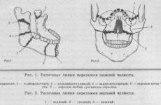 Перелом щелепи: лікування та класифікація переломів щелеп
