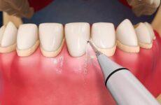Що таке ультразвукова чистка зубів: переваги і недоліки процедури