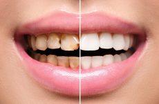 Ламінування зубів: різновиди процедури та особливості проведення