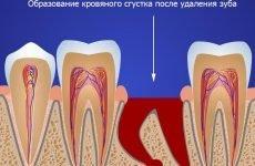 Болять сусідні зуби після видалення зуба: причини і що робити?