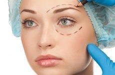 Підтяжка обличчя хірургічним шляхом — види, етапи операції, реабілітація