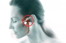 Болить щелепа з лівого боку: причини, методи лікування та профілактики