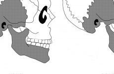 Вивих щелепи: перша допомога, симптоми і методи лікування