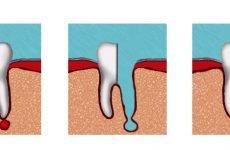 Що таке гемісекція зуба: особливості проведення процедури