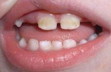Наліт на зубах у дитини: причини появи, чистка та профілактика