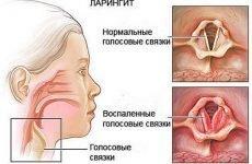 Лікування і профілактика катарального ларингіту