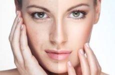 Омолодження обличчя — як повернути молодість за короткий час?