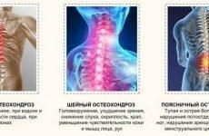 Чи є зв'язок між захворюваннями шийний остеохондроз і артеріальний тиск