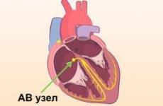 Лікарський медикамент кардіологічного властивості Соталол