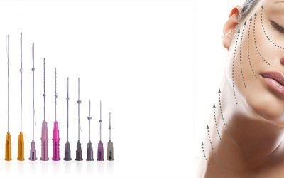 Рідкі нитки для підтяжки обличчя — сучасна і безпечна методика омолодження