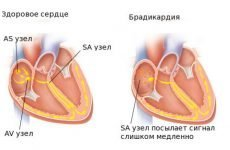 Лікування гіпертонії при брадикардії — які ліки приймати?