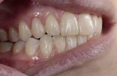 Що таке інтактні зуби?