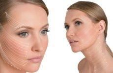 Які бувають мезонити в тредлифтинге для підтяжки обличчя