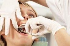 Боляче видаляти зуб: особливості процедури
