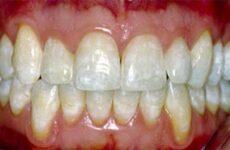 Що таке флюороз зубів – причини виникнення і методи лікування