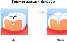 Що таке фиссура зуба: особливості процедури
