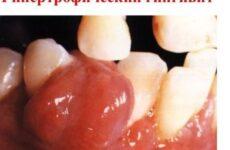 Гіпертрофічний гінгівіт: симптоми та особливості лікування