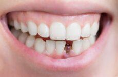 Чи боляче вставляти імплант зуба в десну?