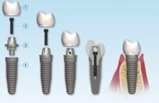 Антибіотики після імплантації зубів: рекомендації пацієнтам