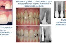 Імплантація передніх зубів: особливості, фото, відгуки пацієнтів