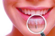 Імплантація зубів: особливості, плюси і мінуси