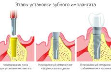 Пластика десни після імплантації – коли допустимо робити і як відбувається
