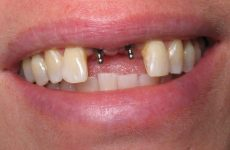 Імплантація передніх зубів, які імпланти потрібно ставити?