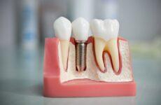 Імплантація зубів – види імплантації, ускладнення і протипоказання