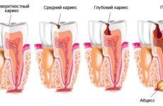 Таблетки від зубного болю: ефективні знеболювальні засоби