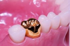 Боляче ставити коронку на зуб: як проходить установка і особливості процедури в цілому