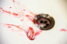Чому кровоточать ясен при чищенні зубів: лікування та профілактика