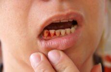 Кровоточать ясна і неприємний запах з рота – причини і лікування