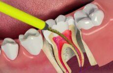 Ендодонтичне лікування зубів: що це таке і як його проводять?