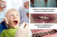 Сріблення зубів у дітей – переваги і недоліки методу