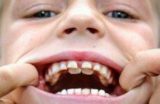 Чому не випадають молочні зуби у дитини: причини